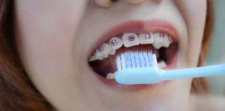menyikat gigi behel secara teratur