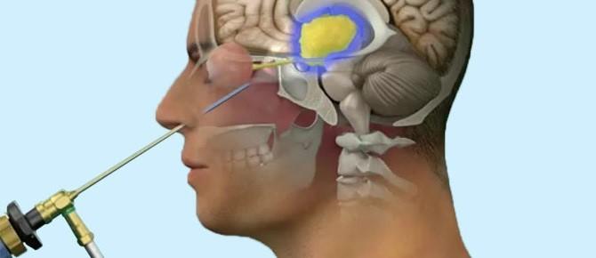 Los efectos del craneofaringioma en la glándula pituitaria - Gamma Knife