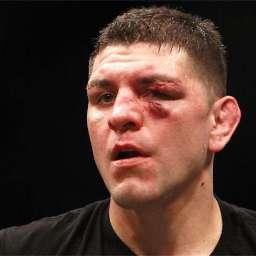 Nick Diaz nega revanche contra Spider no UFC: 'Não quero machucar ninguém'