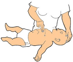 Réanimation : compression thoracique nourrisson
