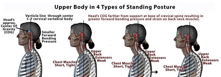 Proper alignment improves neck arthritis symptoms