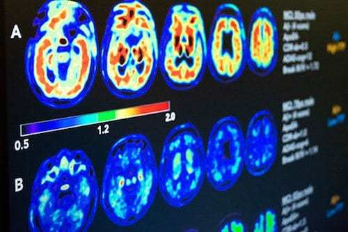 Aging and Risk for Dementia Go Hand-in-Hand