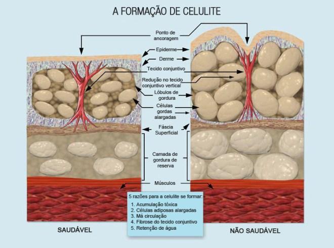 formacao_de_celulite