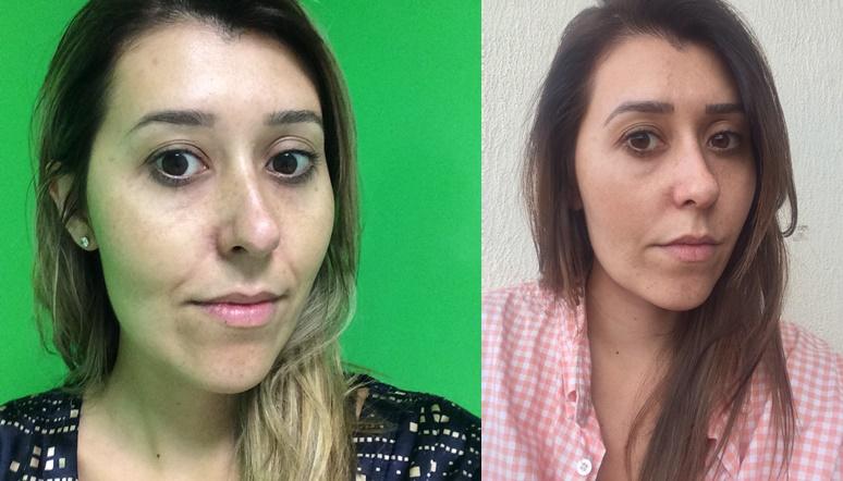 Antes e (loira) e depois de 3 sessões. Repare na melhora do meu bigode chines e viço da pele.