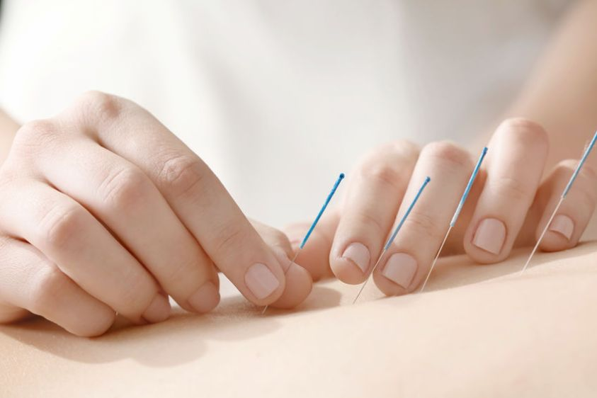 Young woman undergoing acupuncture treatment