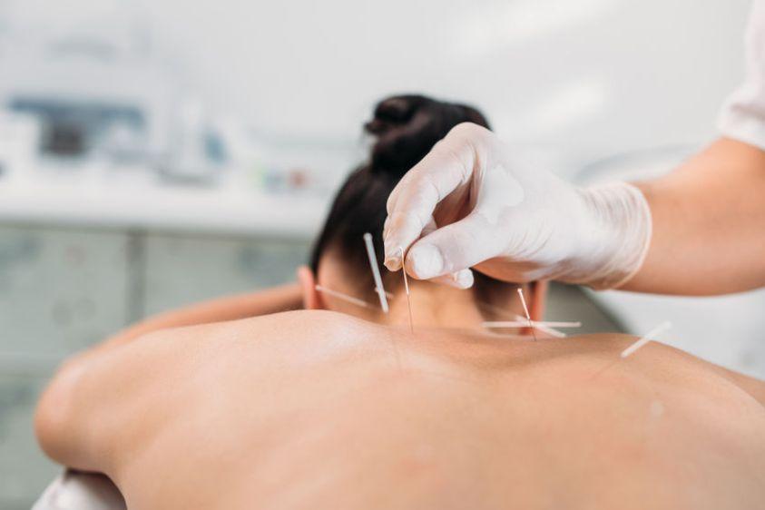 acupuncture treatment in progress