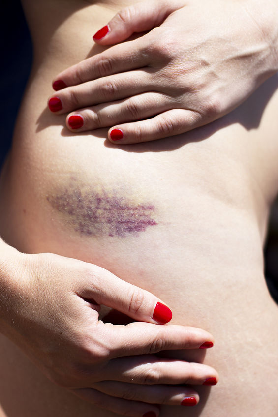 A bruise on the skin, hips,  woman touching, showing her bruise