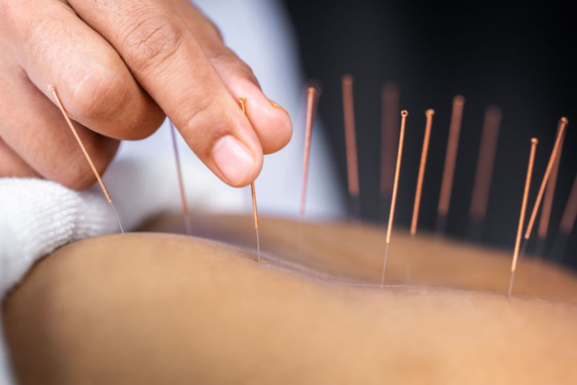 Close-up of senior female back with steel needles during procedure of the acupuncture therapy