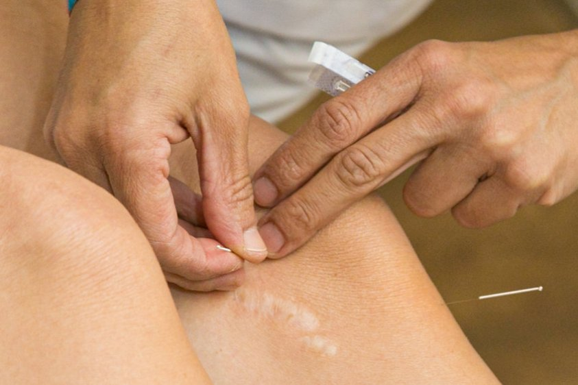 Acupuncture on the knee, treatment of osteoarthritis in the knee
