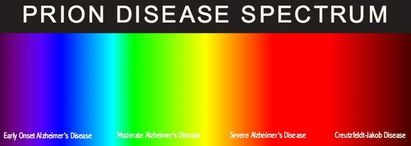 prion disease and CJD