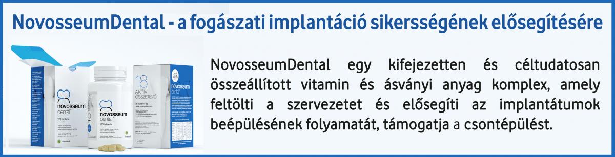 NOD Novosseum dental fogászati implantációt elősegítő ásványi anyag és vitamin komlex