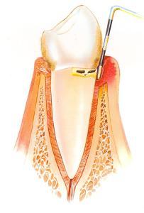 Gáspár Dental ínysorvadás kezelés harmadik stádium