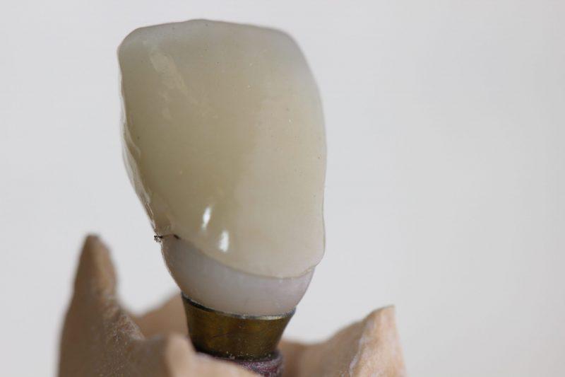korona készítés fogkorona cirkón korona gáspár dental csapos fog készítés