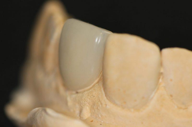 korona készítés fogkorona cirkón korona gáspár dental inlay onlay betét