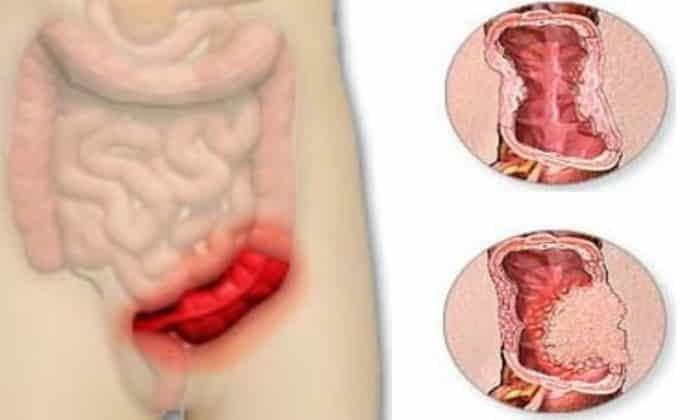 Спазм сигмовидной кишки симптомы. Лечение патологий народными средствами. Заболевания сигмовидной кишки, симптомы и лечение