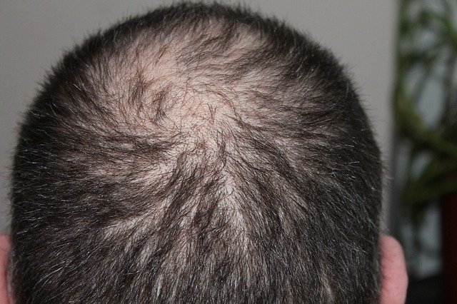 Hair Loss After Bariatric Surgery man's balding head