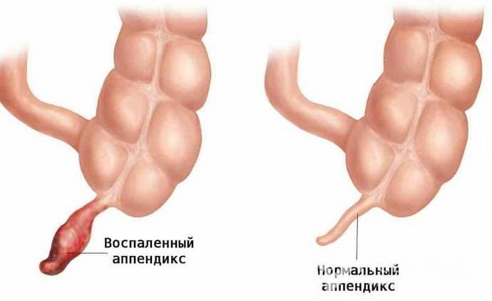 Симптомы аппендицита у мужчин в домашних условиях