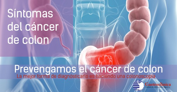 Resultado de imagen para sintomas de cancer de colon