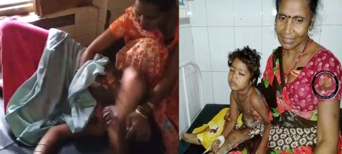 दबंगों ने युवती को दिनदहाड़े जलाया, बच्ची को तेजाब से झुलसाया, गंभीर