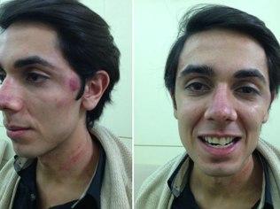 O jornalista Murilo Aguiar, que foi acredito por um funcionário do clube Yacht