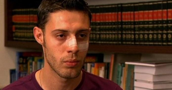 'Pensei que ia morrer', disse ao G1 o jovem agredido com lâmpada na Paulista . Foto: G1