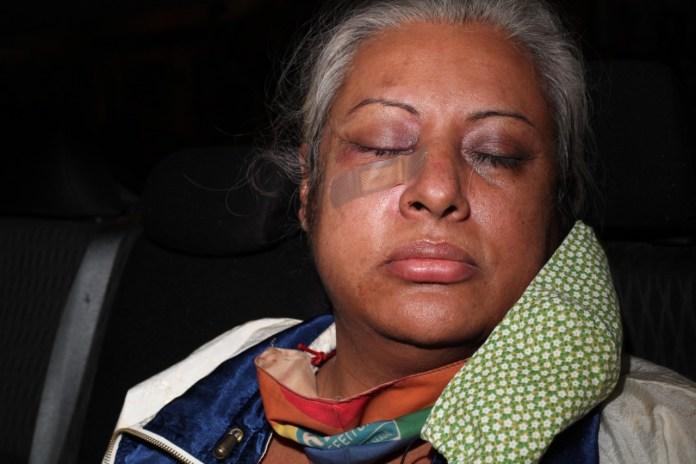 Indianara Siqueira é espancada ao defender trans que estava sendo assediada
