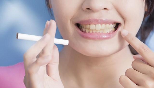 Hilangkan Gigi Kuning Akibat Rokok Dengan Cara Ini Http