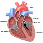 Ketahui Penyebab dan Gejala Penyempitan Katup Jantung Aorta