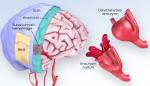 Pembuluh Darah Di Otak Pecah, Apa Penyebabnya?