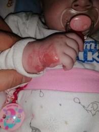 Imagini HORROR - Bebeluș de 5 luni lăsat o săptămână cu branula infectată în mână