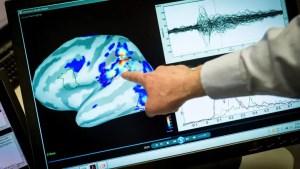 Primul medicament pentru Alzheimer, autorizat în SUA în ultimii 20 de ani. Ce spun medicii despre eficacitatea tratamentului