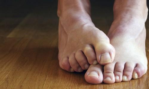Katër Mënyra si të Parandaloni Djersitjen e Këmbëve Gjatë Verës