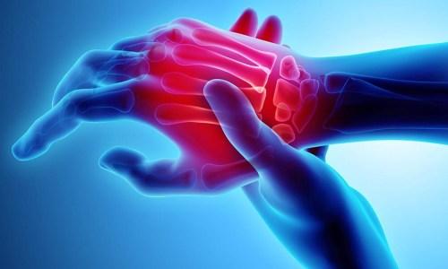 Hapat e Duhur Kundër Artritit – Këshillat që duhet t'i Dini