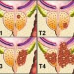 Kanceri i prostatës , Prostata