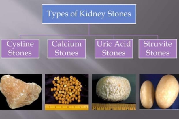 Gurët në traktin urinar , gurët në veshka
