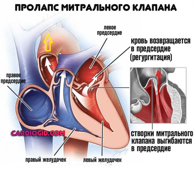 teraligeno hipertenzija