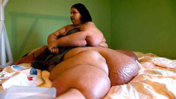 mujer-obesa