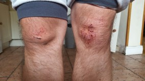 Marcin, who suffered a homophobic attack in the Phoenix Park, showing his injured knees