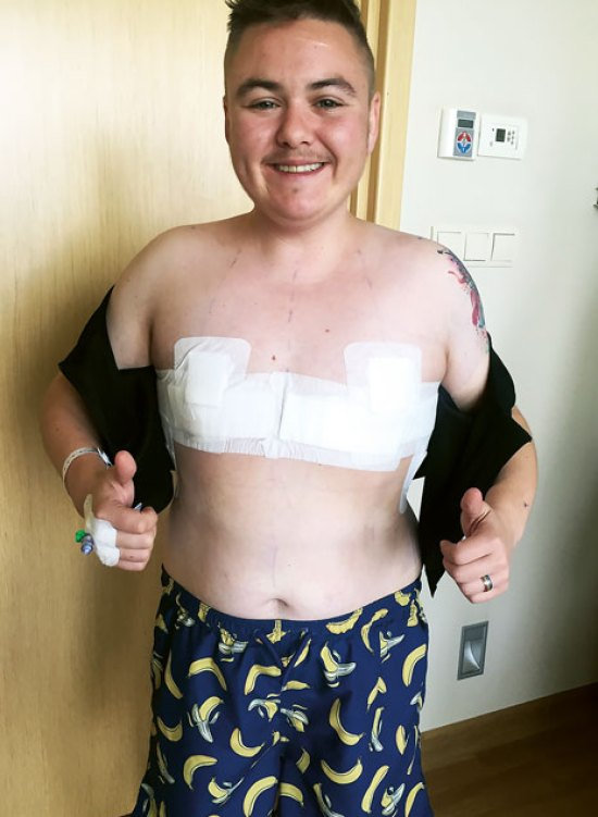 Young trans man smiling, showing the bandages from his top surgery