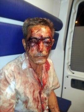 Journalist İlgar Nasibov was brutally beaten in August.