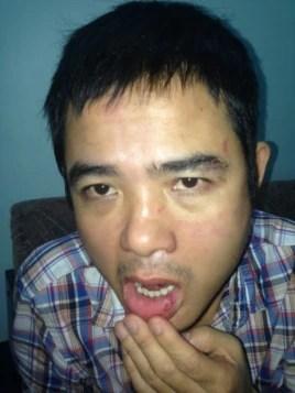 Những vết thương trên mặt anh Lê Quốc Quyết sau khi bị mật vụ truy sát (Ảnh: Danlambao)