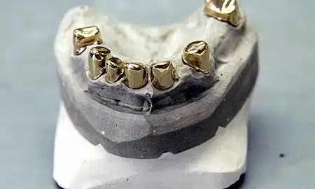 kako-prije-izgledali-zubi