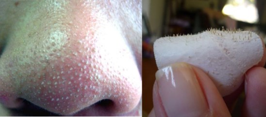 remove blackheads-from-nose