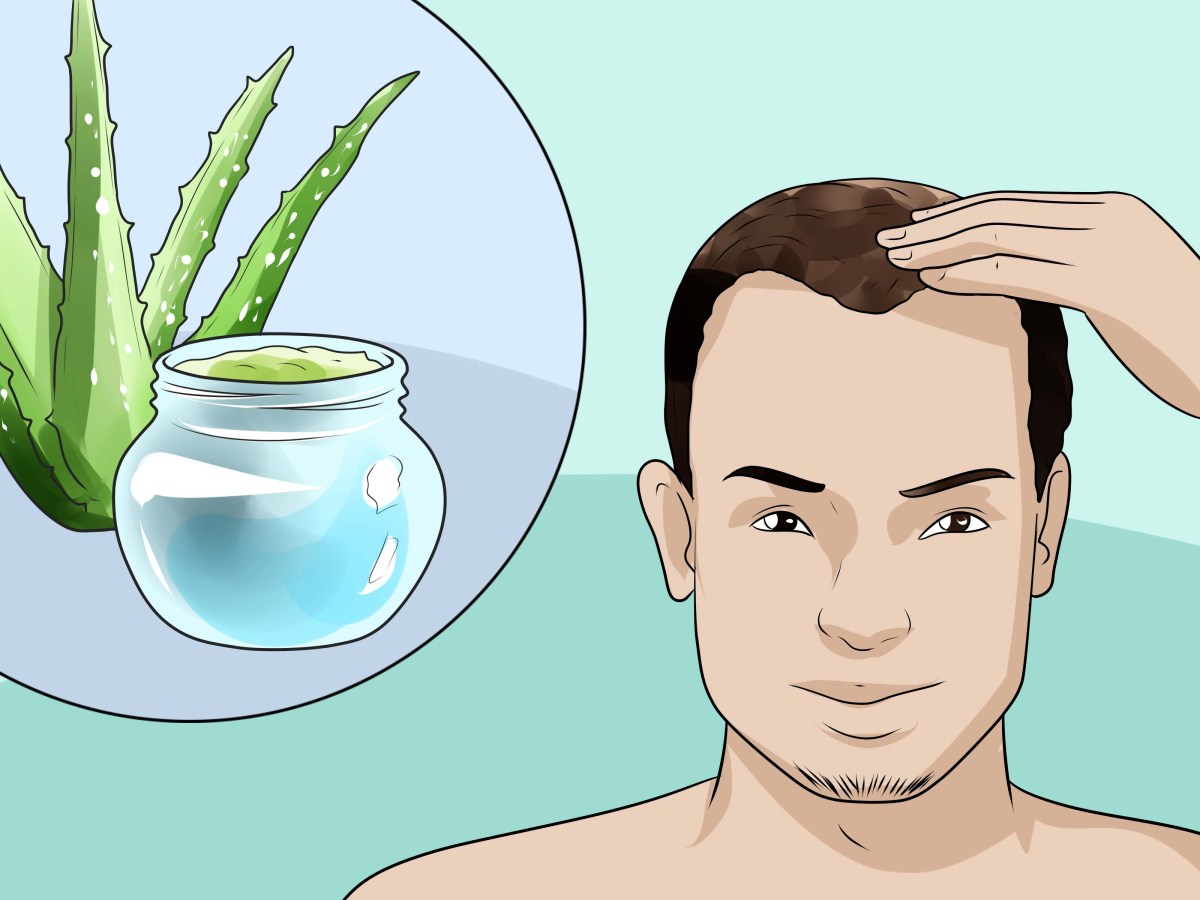 13+ Ways to Cure & Prevent Baldness in Males at Young Age