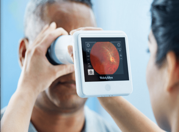 RetinaVue : Handheld Technology from Welch Allyn Makes Diabetic Retinopathy Screening Simple and Affordable