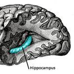 En EE.UU. implantan un dispositivo en el cerebro de un paciente con la esperanza de frenar el Alzheimer