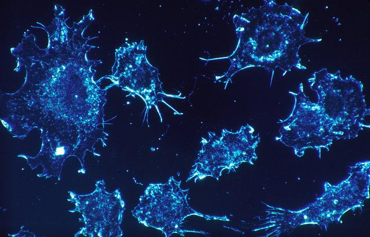 Microsoft trabaja con inteligencia artificial para encontrar una cura contra el cáncer