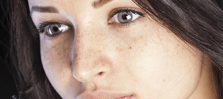چہرے کی چھائیوں کا قدرتی علاج