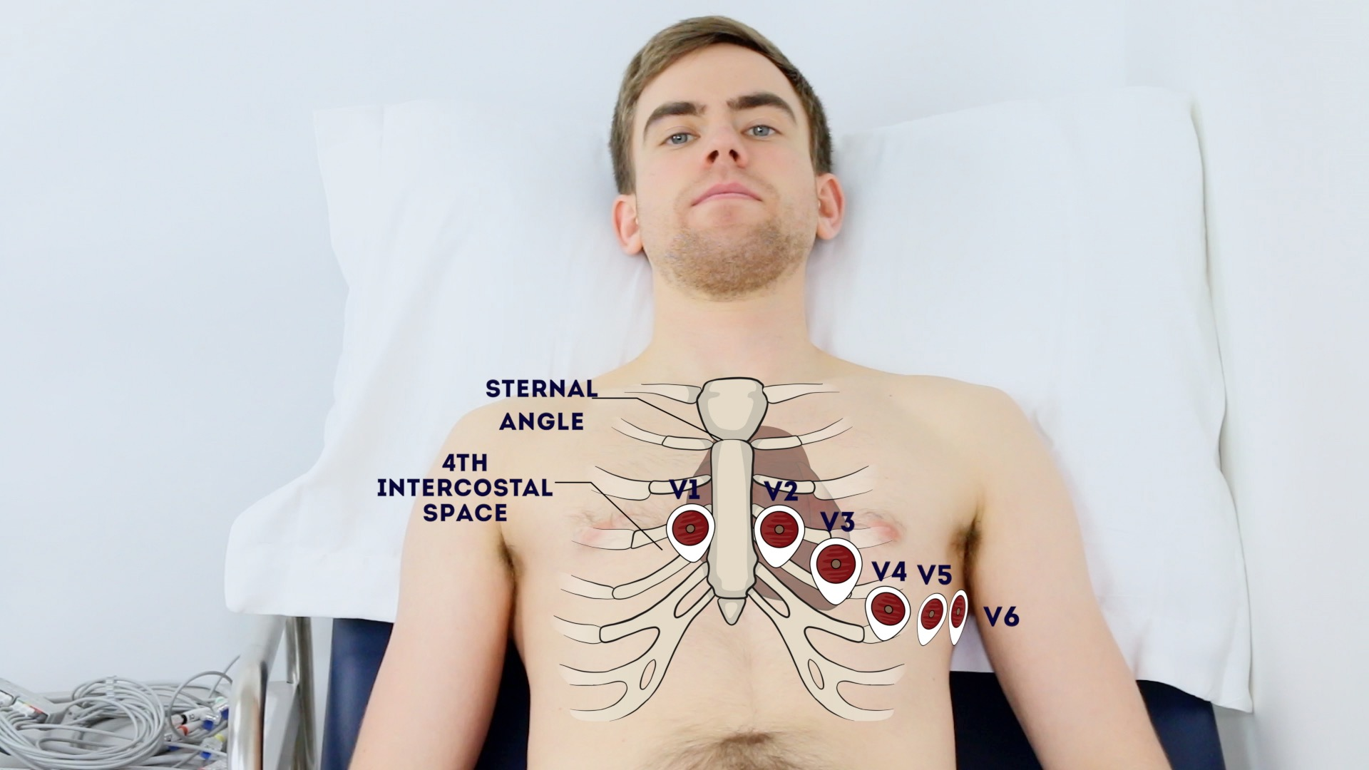 How To Record An Ecg