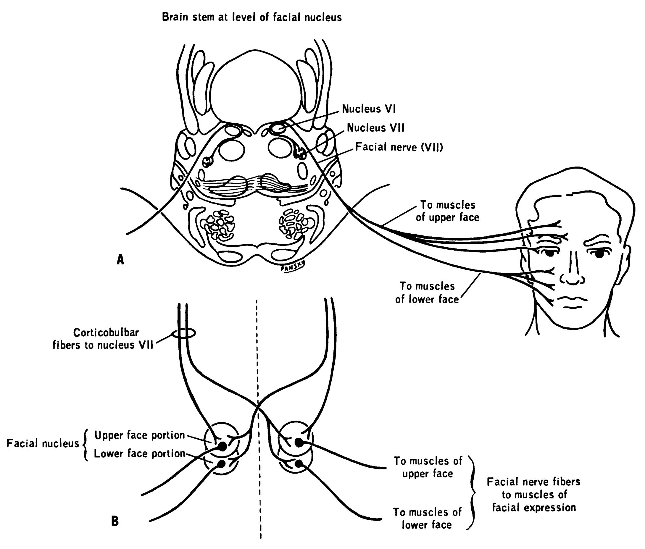 Upper Motor Neuron Lesion Face